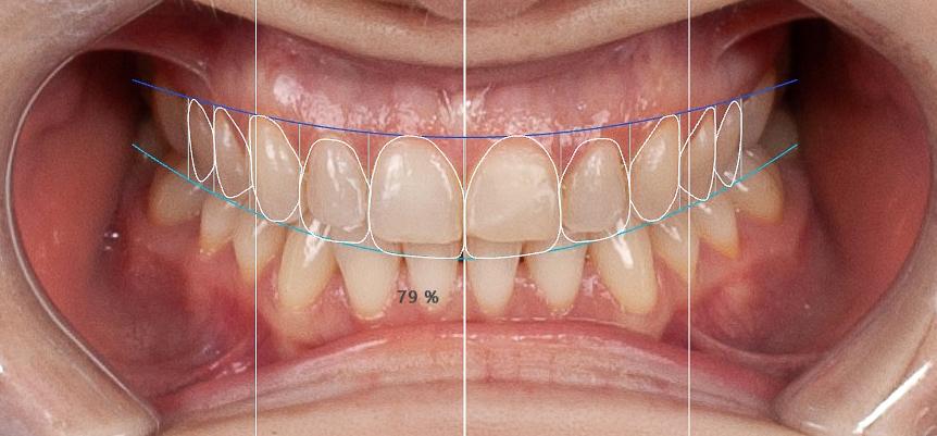diseño de sonrisas  en clínica dental en Campo de Criptana
