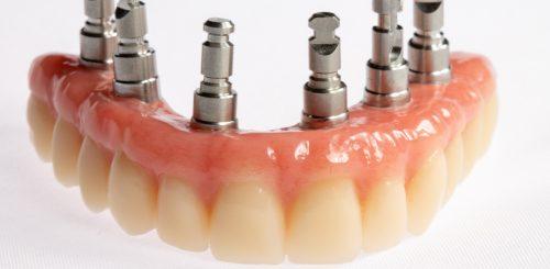 prótesis dentales  en clínica dental en Campo de Criptana